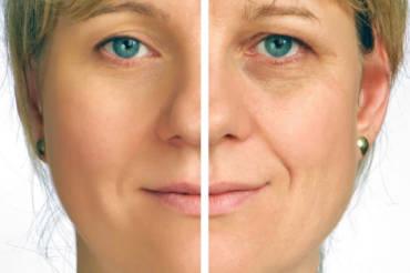 Zabiegi anty-aging – Be Smile & Beauty