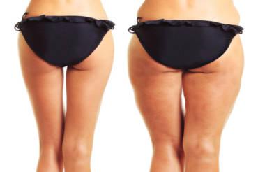 Jak walczyć z cellulitem? Postaw na zabiegi w Klinice Smile&Beauty