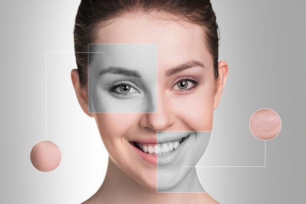 Medycyna anty-aging – skuś się na złuszczanie kwasami
