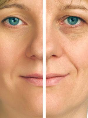 mezoterapia-beziglowa-salon-kosmetyczny