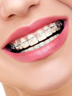 ortodoncja warszawa