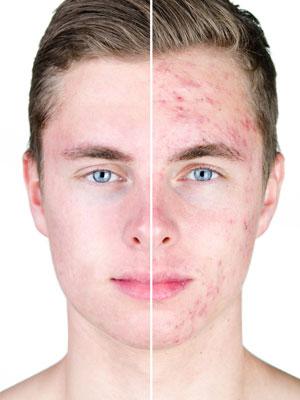 zabieg oczyszczanie twarzy