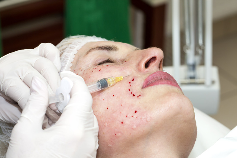 Mezoterapia igłowa – skuteczny sposób na zmarszczki