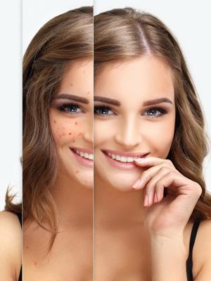 zabieg usuwania trądziku w klinice Smile&Beauty